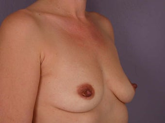 Breast Augmentation before 280120