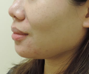 chin and jaw liposuction after 1181077