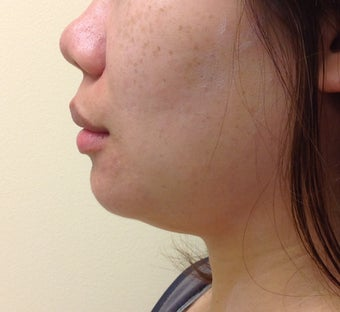 chin and jaw liposuction before 1181077