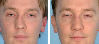 Functional Rhinoplasty before 1208309