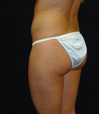Brazilian Buttocks Lift before 145560
