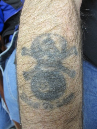 10/12 Laser Tattoo Removal Treatments- Black Tattoo before 625350