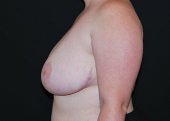 Breast Reduction after 949243
