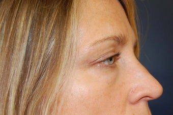 Juvederm dermal filler for upper cheek and under eyes before 730932