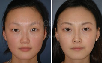 Asian Eyelid Surgery before 815760
