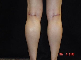 Calf Implants 692868