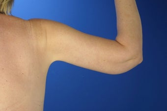 45 Year Old Weight Loss Patient With Arm Laxity 777555