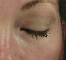 Tear Trough after injection with Restylane after 52897