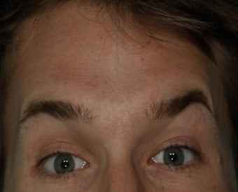Male treated for Forehead Wrinkles after 772008