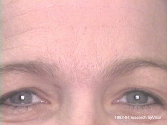Frown Line Treatment after 985038