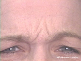 Frown Line Treatment before 985038