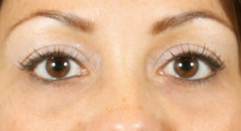 Filler for Under-eye circles (tear troughs) after 936982