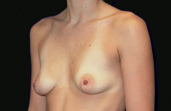 breast augmentation with mastopexy 391316