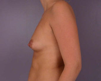 Breast Asymmetry Correction before 281342