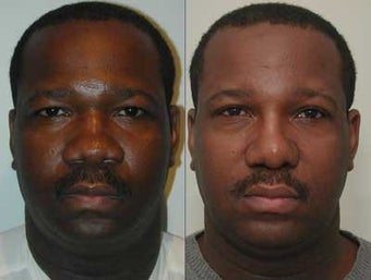 African American Rhinoplasty before 44102