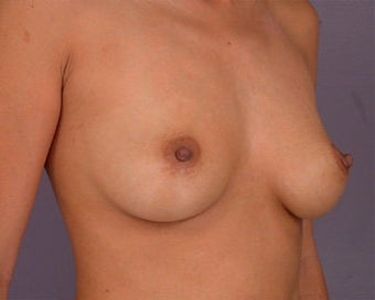 Breast Augmentation before 281407