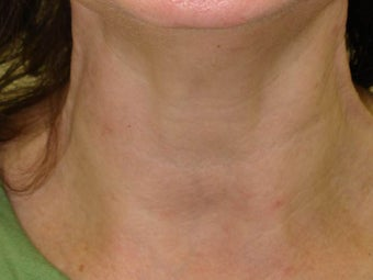 Botox after 989189