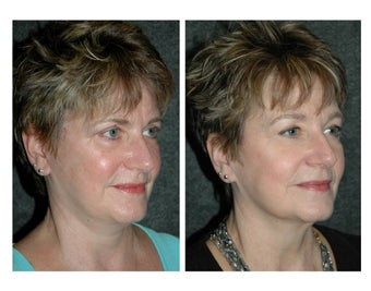 Laser Resurfacing for Reduction in Fine Lines and Improved Skin Tone after 896481
