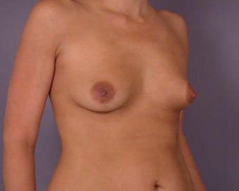 Breast Asymmetry Correction before 281343