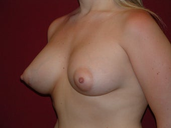 Breast Augmentation after 683108