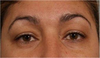 44 Year olf female with sagging of her eye brows and upper eye lids.  She doesn't want surgery after 766000