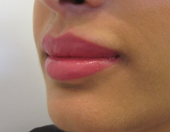 Lip Augmentation after 1305535