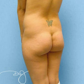 Butt Augmentation 877639
