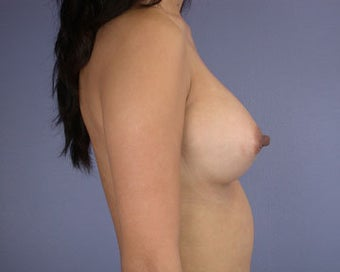 Breast Augmentation after 281394