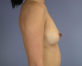 Breast Augmentation before 281394