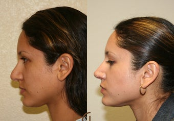 Revision Rhinoplasty before 252418