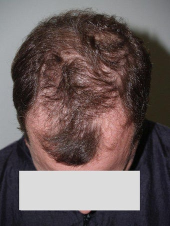 Hair Transplant before 199351