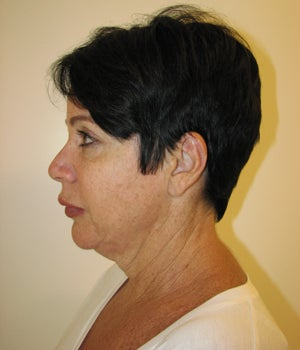 Neck Lift Before and After  before 718882