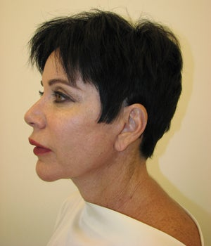 Neck Lift Before and After  after 718882