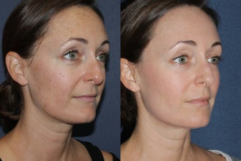 Before & After Fraxel Dual Treatment after 806238