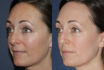 Before & After Fraxel Dual Treatment 806238