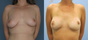 Breast Reconstruction before 1099712