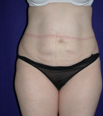 Tummy Tuck (abdominoplasty) before 208484