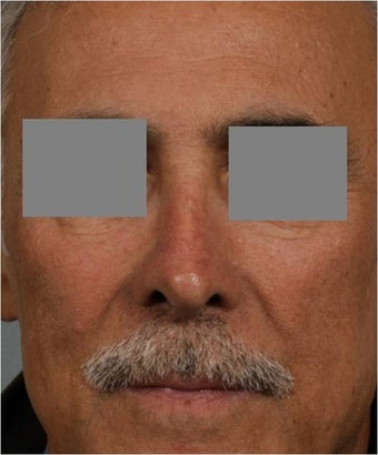 "68 year old male with post rhinoplasty deformity prefers non surgical, ""Injectable Rhinoplasty"" treatment"