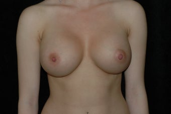 Breast Augmentation after 336363
