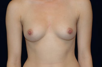 Breast Augmentation before 336363