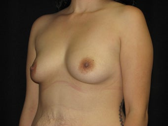 450 cc silicone gel breast implants before 700027
