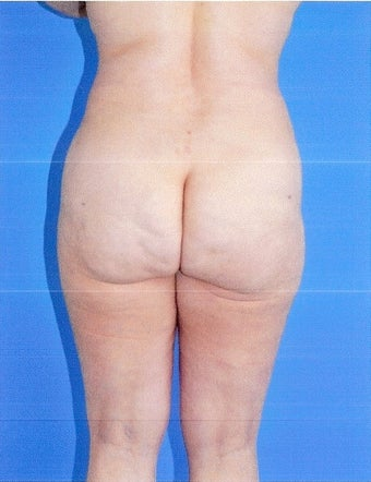 Liposuction after 499962