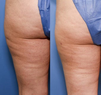 37 year old with cellulite before 696152