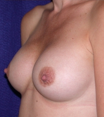 Breast Implants after 520375