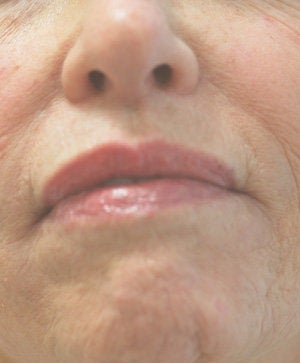 Perlane injections for chin assymmetry  before 93355