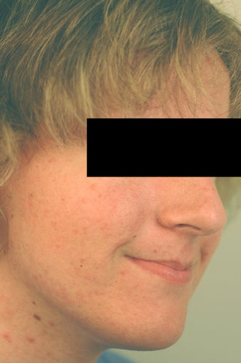 Acne Treatment Before and After after 82964