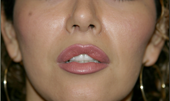 Upper Lip Lift or Lips  after 725806