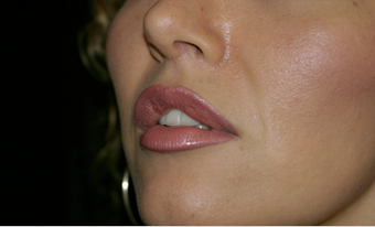 Upper Lip Lift or Lips  725806
