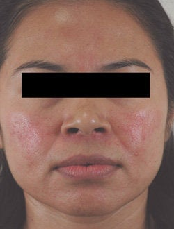 Rosacea Treatment with Lasers before 106550