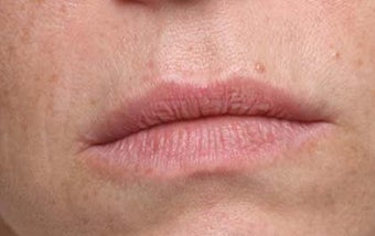 Lip treatment with Restylane® before 119340